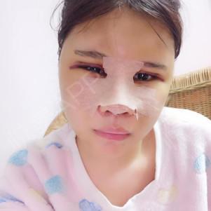 面诊医生的时候医生建议我可以把眼睛做一下 眼睛,鼻子,下巴项目很多