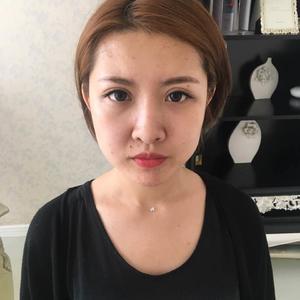 【西安激光溶脂瘦脸】 V型脸:施尔绮