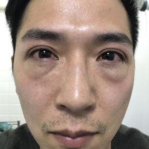 【西安健丽-激光去眼袋】