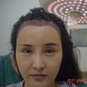 种植发际线