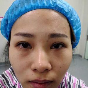 长沙叶子医疗美容自体脂肪填充全面部