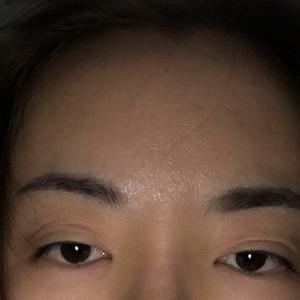 眼部整形失败修复
