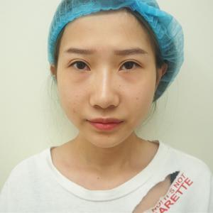 日式精细无痕内切祛眼袋 无痕外眼角