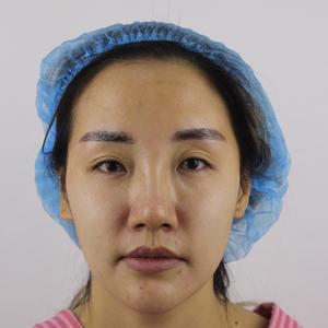 眼部综合手术