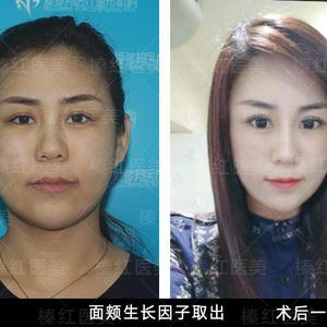 面颊生长因子取出修复