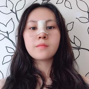 小岑的隆鼻故事