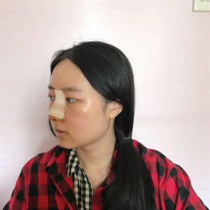 婷婷的鼻综合