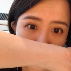 武汉 埋线修复 双眼皮修复切开双眼皮
