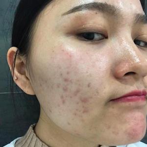 武汉激光祛痘