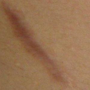 疤没了,终于可以漏美背啦!